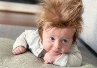 Аномальные волосы прославили младенца из Австралии