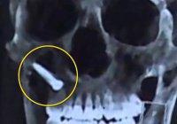 Житель Китая вбил в лицо гвоздь и выжил