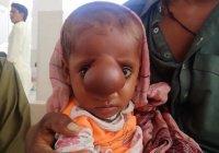 Ребенок с мозгом на лице родился в Пакистане