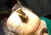 В Индии мужчине удалили 10-сантиметровый рог
