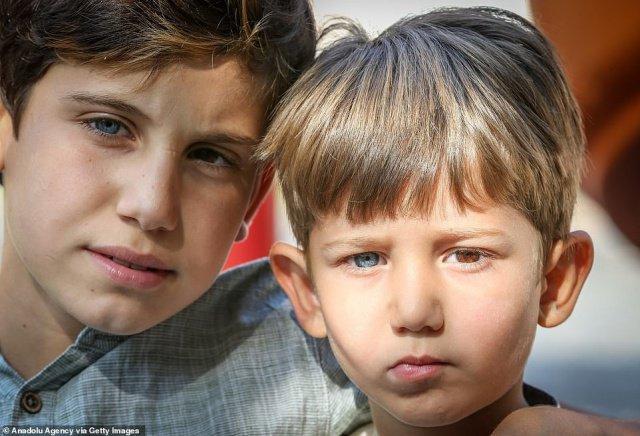 Разноцветные глаза сделали турецких мальчиков звездами интернета