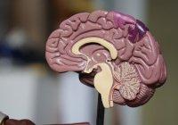 Стало известно, как снизить риск развития инсульта