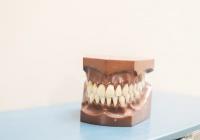 Выявлена связь между здоровьем зубов и инсультом
