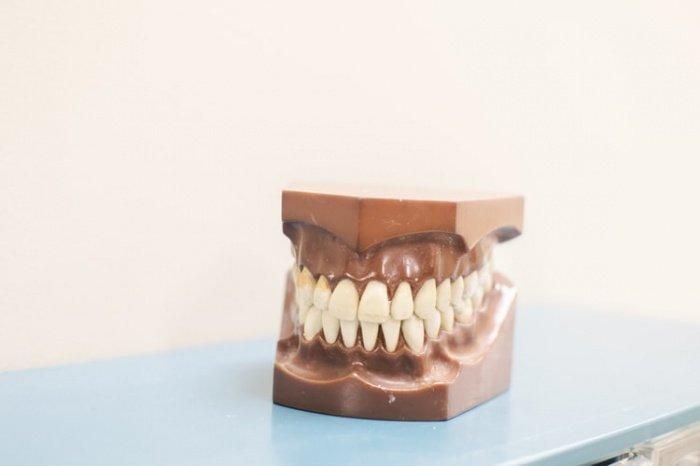 Искусственный зуб на чипе может выдержать больше манипуляций