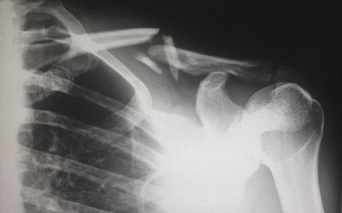 Риск остеопороза особенно высок у женщин в постменопаузе