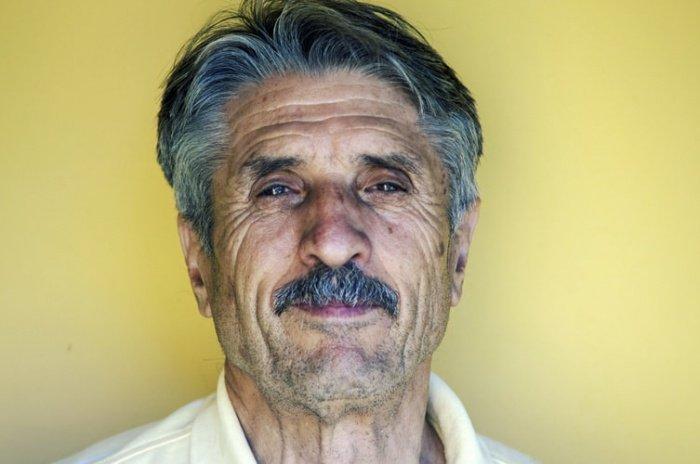 Типы старения взаимоисключающими не являются: человек может иметь признаки 2 типов сразу. Принадлежность к одному типу не значит, что другие биологические пути старения у того или иного человека не выражены