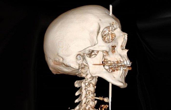 3D-модель полученной травмы. Фото © Le Monde