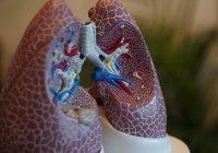 Выявлены опасные последствия коронавируса для выздоровевших