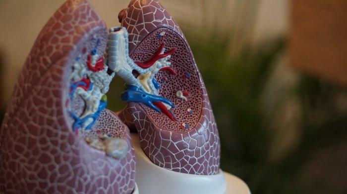 Ключевая цель лечения рака легких во время пандемии - минимизировать риск заражения пациента и персонала, управлять всеми опасными аспектами болезни