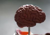 Обнаружен неожиданный предвестник опухоли мозга
