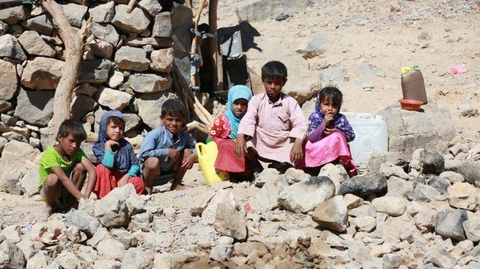 Дети Йемена страдают от недоедания.