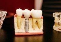 Мясников рассказал, как больные зубы приводят к опухоли