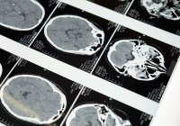 Онколог перечислила пять главных симптомов опухоли головного мозга