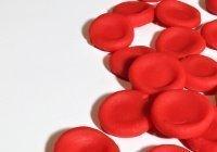 Медик перечислил первые признаки рака крови