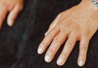 Мясников сообщил, на какие заболевания указывают проблемы с ногтями