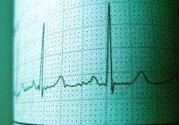 Врачи объяснили, как распознать сердечный приступ
