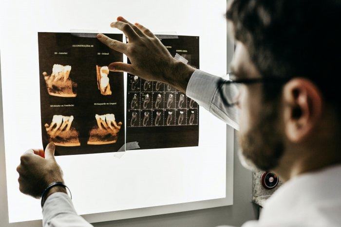 Даже если боль отступила, бактерии продолжают размножаться (Фото: unsplash.com).
