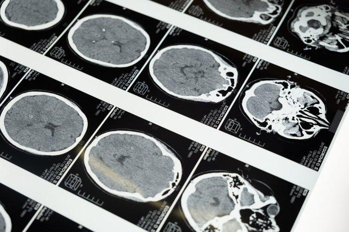 Рак мозга тяжело поддается лечению (Фото: unsplash.com).