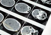 Ученые выявили в мозге «горячие точки», указывающие на онкологию