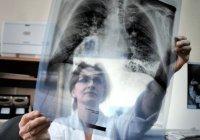 Заболеваемость туберкулезом в России достигла минимума за все время наблюдений