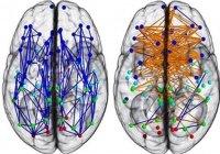 3 врожденных различия между мозгом мужчин и женщин