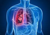 Ученые определили еще одну причину рака легких