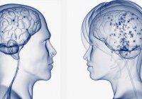 У злых и добрых людей разный размер мозга