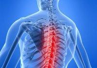 Ученые: Причиной болей в спине является депрессия