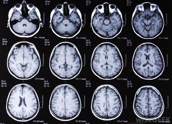 Ученые из США составили список симптомов ранней стадии рака.