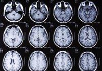 Ученые из США составили список симптомов ранней стадии рака