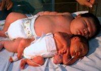 В Индонезии родился самый большой младенец в мире весом 9кг