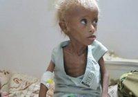 BBC: в Йемене на грани вымирания – целое поколение (Видео)