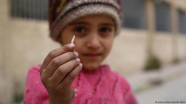 От войны в Сирии больше всего страдают дети.