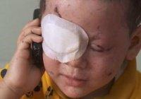 Ослепшая иракская девочка стала символом трагедии в Мосуле