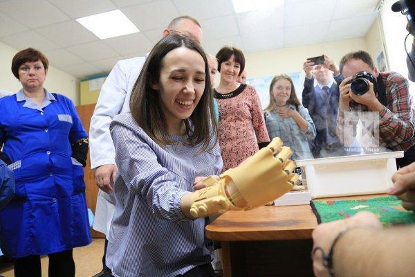 С новой искусственной рукой, по заверениям производителей, девушка сможет даже самостоятельно вставлять нитку в игольное ушко