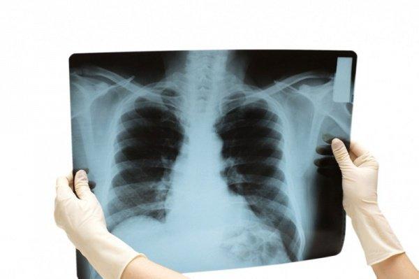 Если кроме мужчины-рентгенолога в больнице есть и женщина рентгенолог, мужчине запрещено делать снимки женщинам.