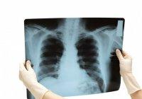 Может ли мужчина делать рентгеновские снимки женщинам?