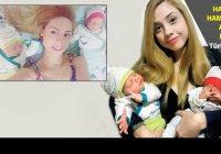 Уникальная пара двойняшек появилась на свет в Турции