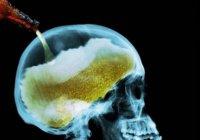 Ученые открыли неожиданную опасность алкоголя для мозга человека