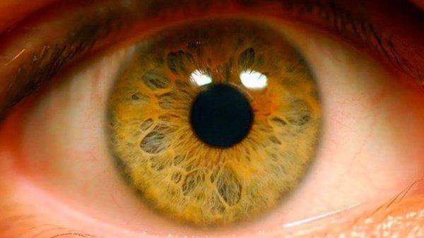 Суть лечения заключается в том, что в глаз больного вкалывается модифицированный вирус
