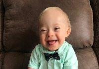 Впервые лицом Gerber стал ребенок с синдромом Дауна (ФОТО)