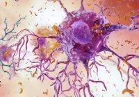 Ученые: Болезнь Альцгеймера заразна