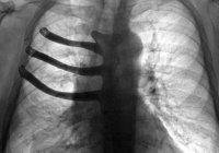 В Британии мужчине напечатали грудную клетку на 3D-принтере