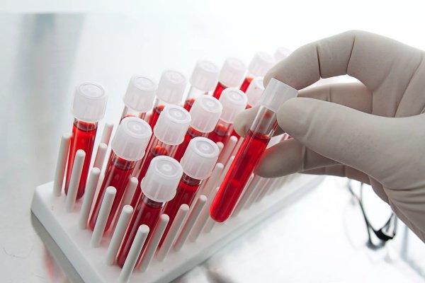 Некоторые скрытые дефекты могут проявляться по специальным маркерам, которые можно выявить посредством лабораторного анализа