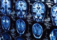 Искусственный интеллект научили диагностировать рак мозга
