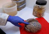 Найден способ влиять на центр желаний в человеческом мозге