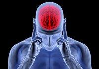 В США научились выявлять инсульт за 30 секунд