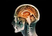Ученые научились контролировать головной мозг
