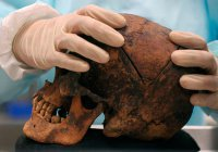 В зубах древнего человека обнаружен смертоносный вирус
