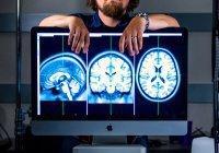 Биологи из Японии научились восстанавливать мозг